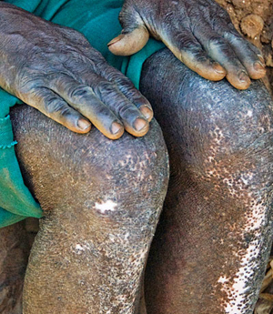 "Another man with onchocerciasis shows the skin on his legs, which has lost some of its pigment, a condition referred to as ""leopard skin."""