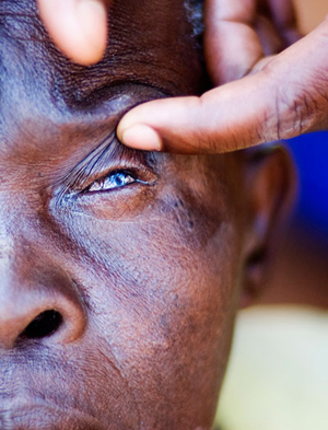 A health worker in Uganda examines a community member with trachoma.