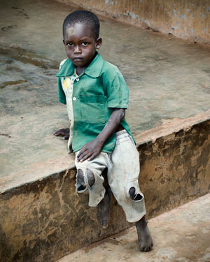 A young Ugandan beneficiary of USAID's NTD Control Project. Source: Andrea Peterson